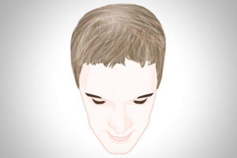 Diffuser Haarausfall Bei Männern Haar Ausfallcom